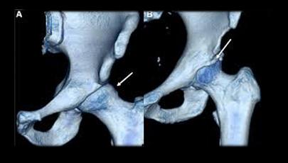 3D CT of Femoroacetabular impingement