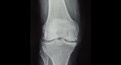 X-ray of mainly medial compartment OA to go with the unicompartmental replacement