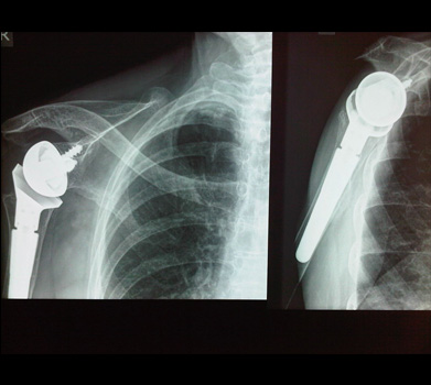 X-ray of a reverse shoulder replacement